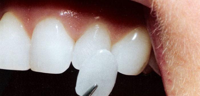 Вініри на зуби - голлівудська усмішка забезпечена!